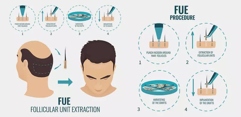 FUE (Follicular Unit Extraction)1