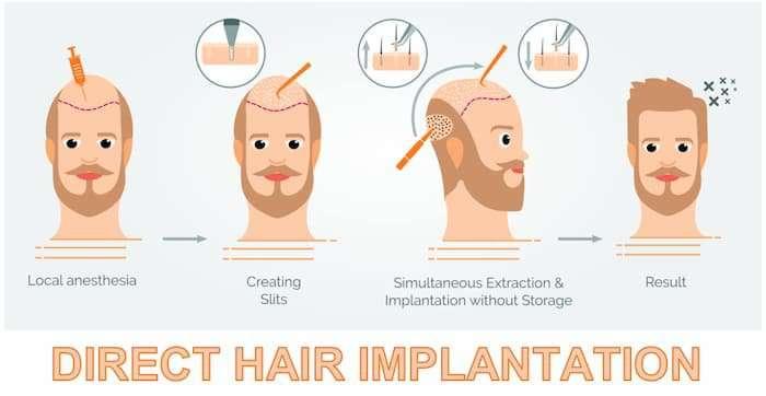 Direct Hair Implantation
