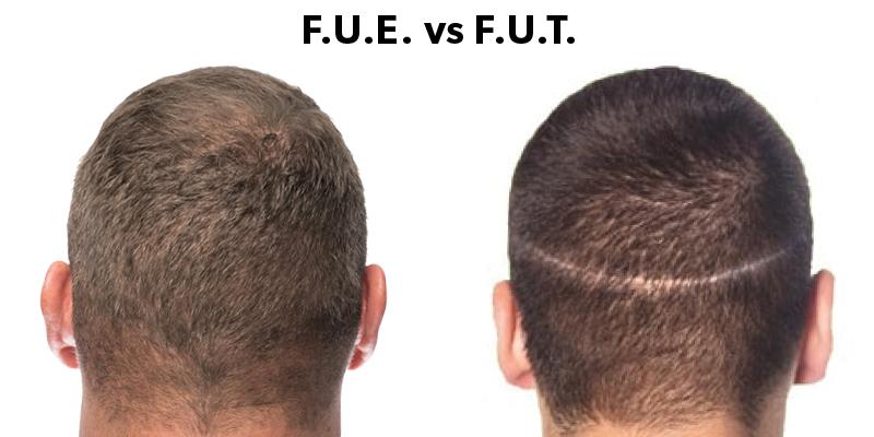 Hair Transplant in FUT
